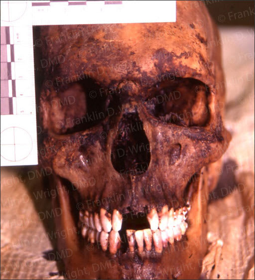 Image of a skull with well preserved teeth.