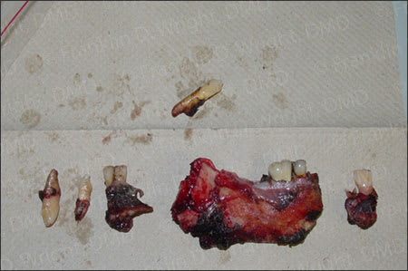Image showing teeth that were part of co-mingled remains.