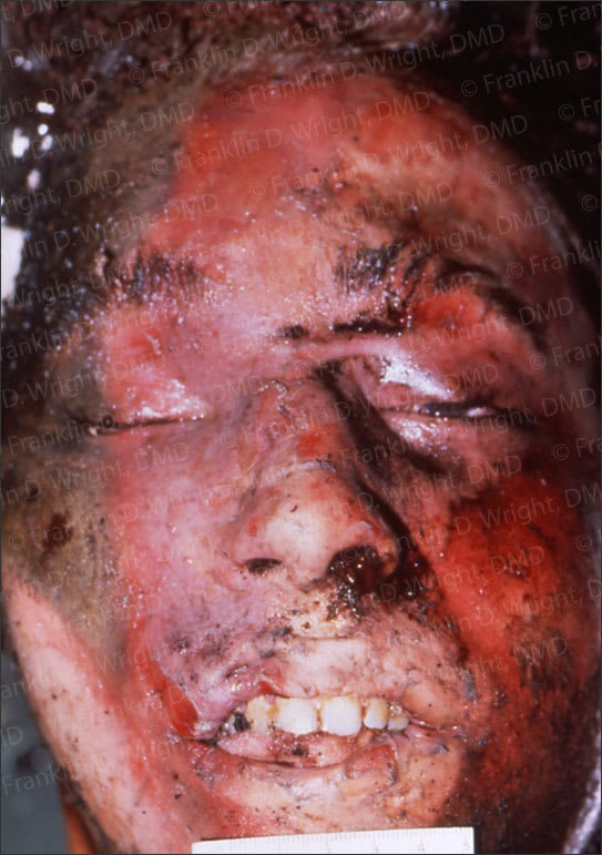 Image showing example dental identification of a burn/trauma victim.