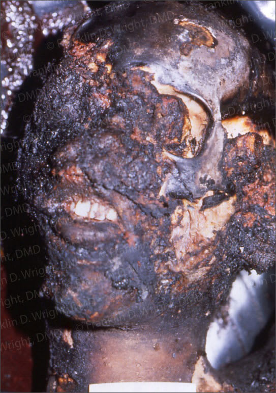 Image showing victim of burn/trauma identified with dental records.
