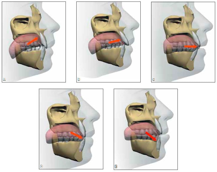 Photo anterior open bite and interdental tongue position