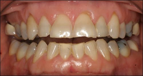 Photo showing attrition and fracturing due to bruxism.