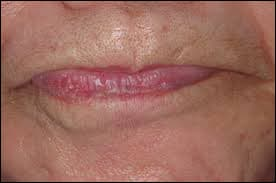 Photo showing desensitization of oral muscles