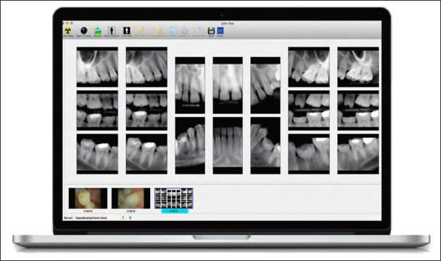 Photograph showing image of laptop displaying digital full-mouth images.