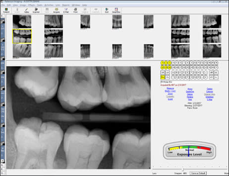 Photograph showing Digital Full-mouth Series.