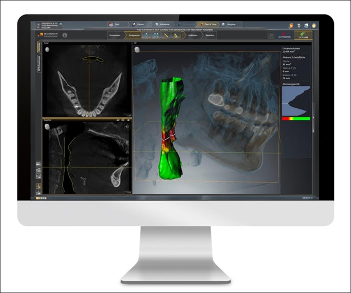 Photograph showing 3D Digital Imaging System