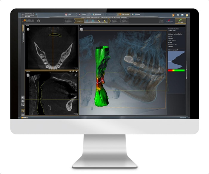 Photograph showing 3D Digital Imaging System.