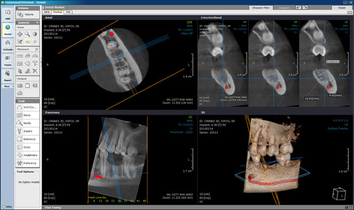 Photograph showing 3D Imaging for Diagnoses.
