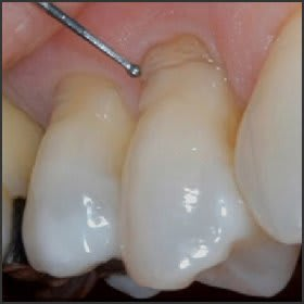 A History and Update of Fluoride Dentifrices