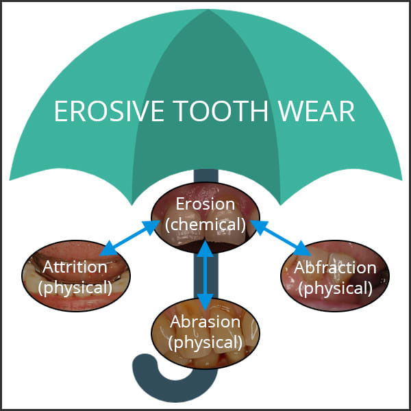 Diagram showing different kinds of erosive tooth wear (ETW).