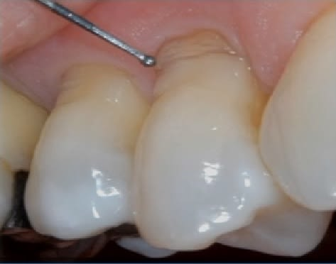 Photo showing the presence of NCCL lesions suggesting the likelihood of improper brushing habits.