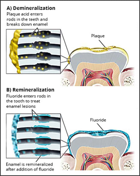 Diagram showing the presence of NCCL lesions suggesting the likelihood of improper brushing habits.