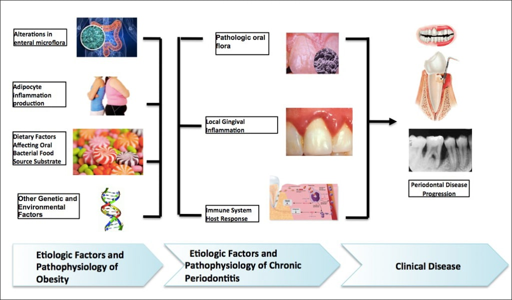 Diagram showing the proposed multifactorial interaction between obesity and periodontal disease