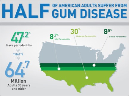 Map infographic showing percentages of American adults with gum disease