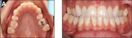 Initial photos before orthodontic treatment