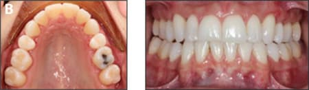 Treatment progress after 14 aligners used