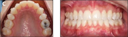 Treatment progress after first set of aligners
