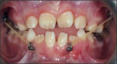 Photo of Class III elastic force from maxillary miniplate to mandibular miniplate