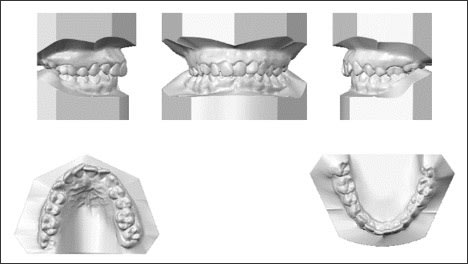 Example of models generated via alginate impressions mailed to OrthoCAD