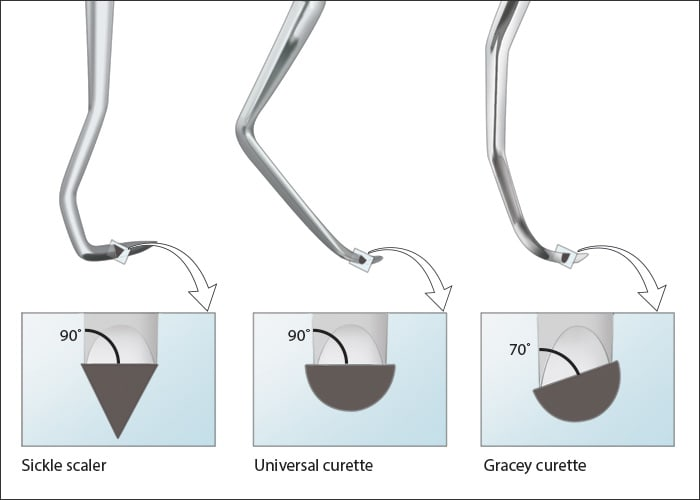 Illustrations showing the anatomy of Sickle scaler, Universal curette and Gracey curette