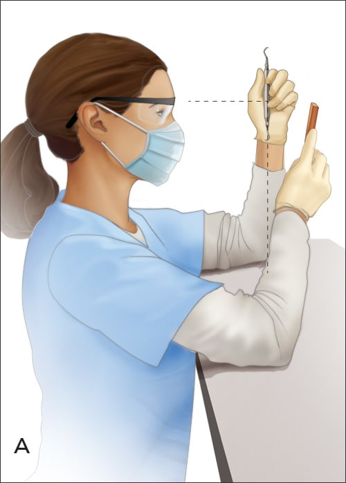 Illustration of proper way to hold a universal curette