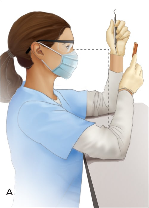 Illustration showing the correct way to hold a gracey curette