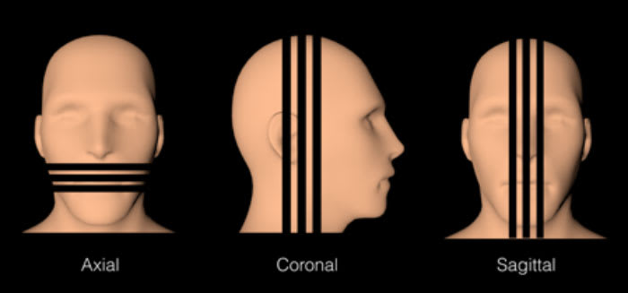 Image showing multiplanar (MPR) reformatted images in axial, coronal, and sagittal orientation reconstruction