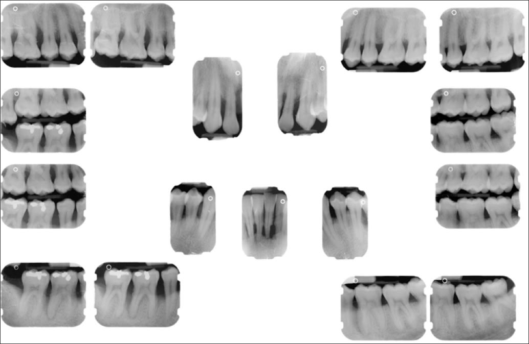 Photo showing radiographs.