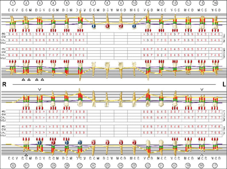 Photo showing periodontal charting.