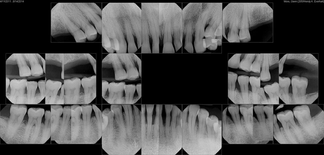 Photos showing bitewing x-rays
