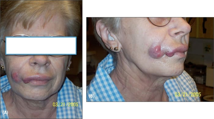 Photos showing front and side facial views of patient with mass on right cheek