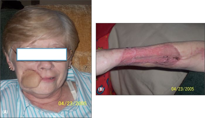 Photo showing patient's face after skin graft and arm where graft was taken