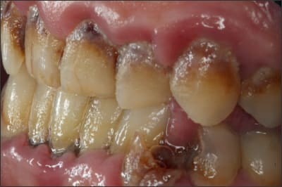 Photo showing an example of dental caries