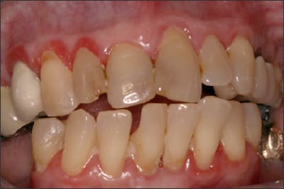 Photo showing an example of periodontal disease