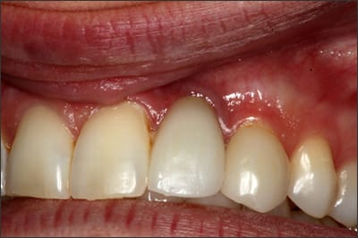 Photo showing an example of dental implants