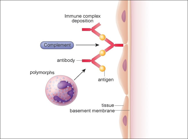 Illustration of Type III or immune complex-mediated reaction.