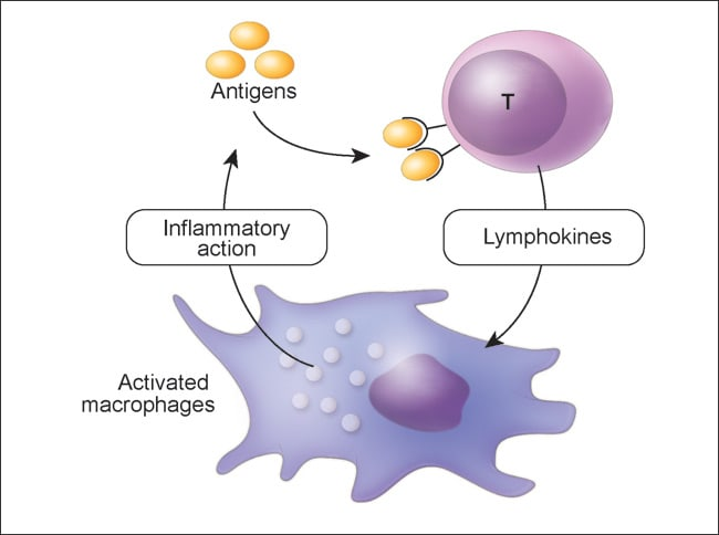 Illustration of delayed T cell-mediated hypersensitivity reaction.