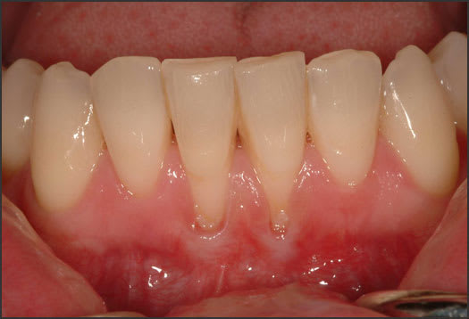 Photo showing gingival recession.
