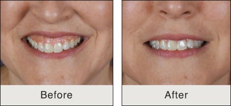 Images showing the reduction of a high lip line