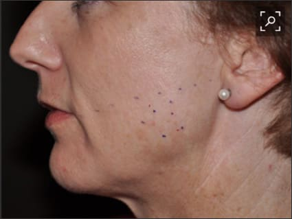 Image showing the injection sites for BTX to reduce orofacial pain