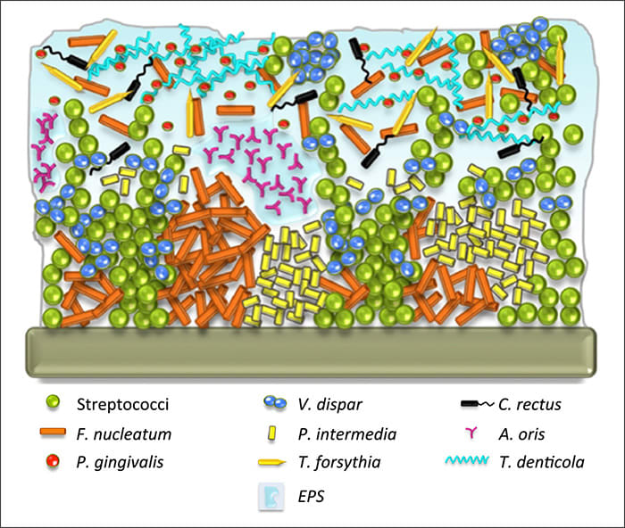 Diagram showing an example of biofilm in periodontal disease