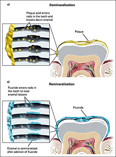 Illustrations showing demineralization and remineralization on tooth enamel
