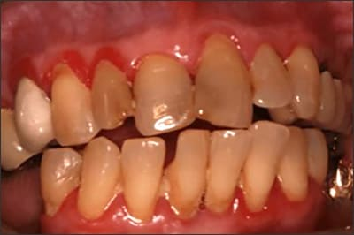 Photo showing established gingivitis including red, edematous and bleeding gums