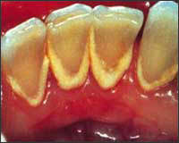 Photo showing moderate dental calculus