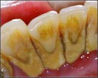 Photo showing heavy dental calculus