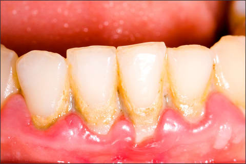 Photo showing plaque build-up on teeth along the gumline