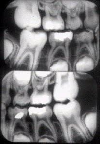 Radiograph of child bitewings