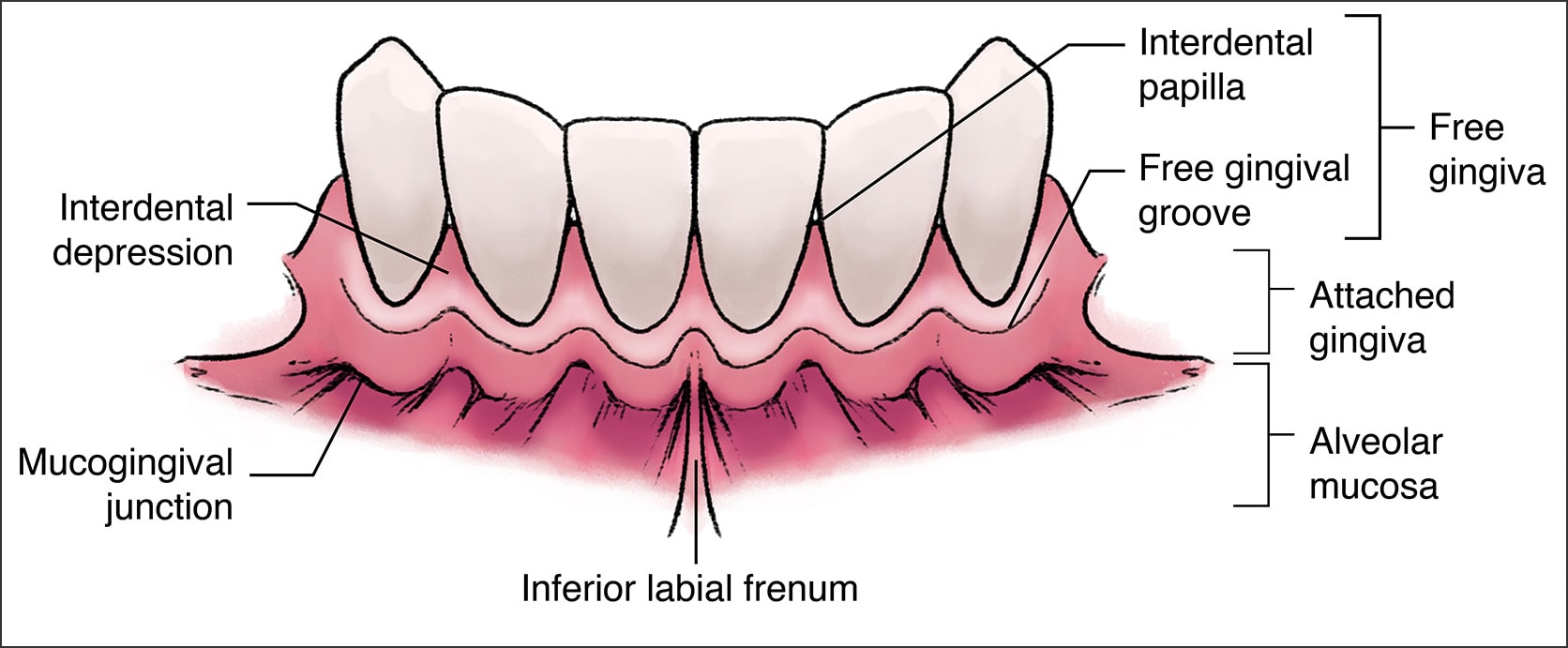Illustration showing the components of the Gingival Unit
