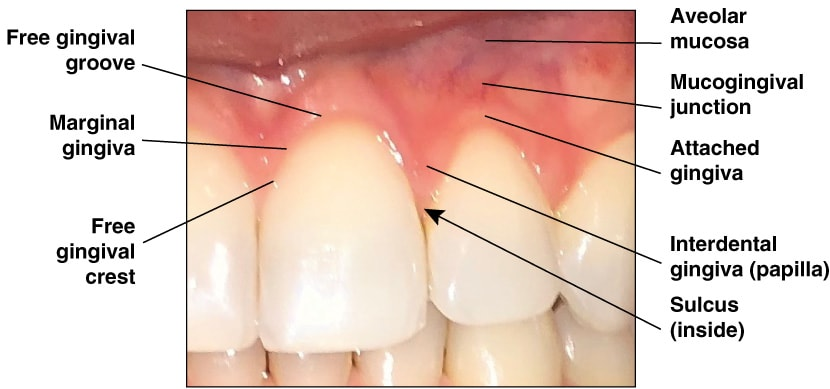 Photo showing the components of Gingiva