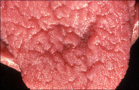 Close-up photo of the tongue showing drug-induced dry mouth.